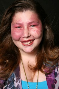 Sarah with Sturge-Weber syndrome